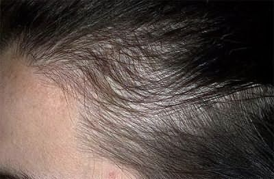 Дифузне випадання волосся у жінок лікування