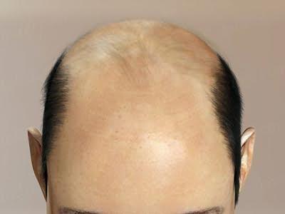 Гормональне випадання волосся у жінок лікування
