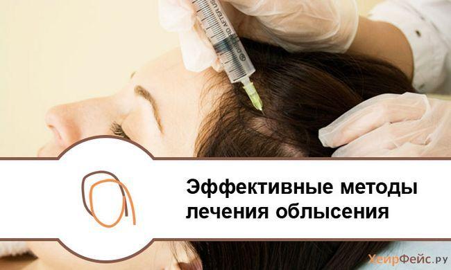Ефективні методи лікування облисіння
