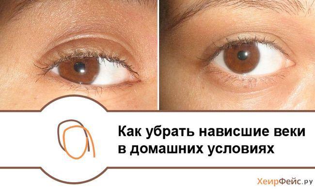 Як прибрати навислі повіки: маски і масаж