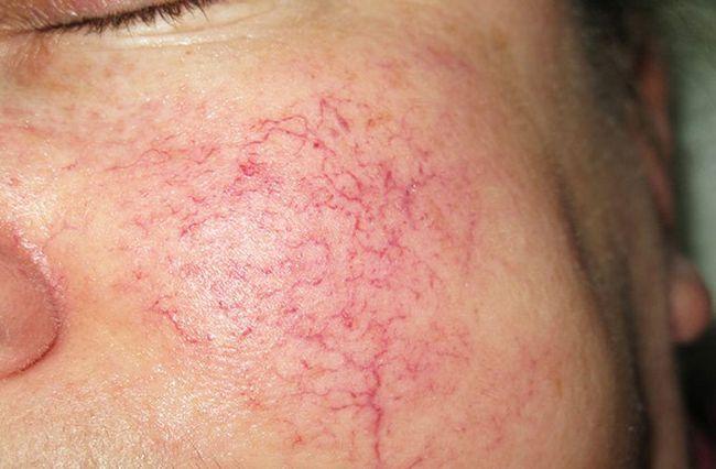 Купероз шкіри обличчя: способи лікування купероза