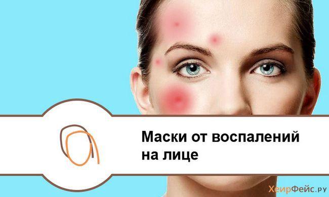 Маски для обличчя від запалень на шкірі