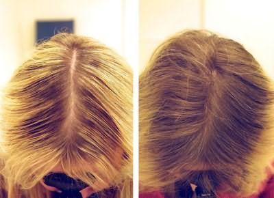 Маски від випадіння волосся відгуки