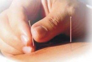 Рефлексотерапія лікує без ліків