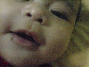 Родимки на тілі у дитини: чи варто турбуватися?