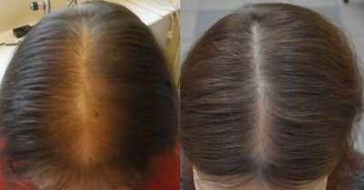 Результат застосування таблеток Селенцін: фото до і після
